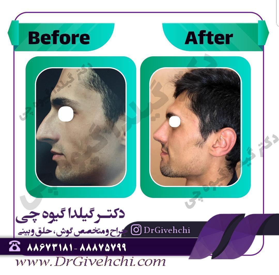 نمونه جراحی بینی دکتر گیلدا گیوه چی