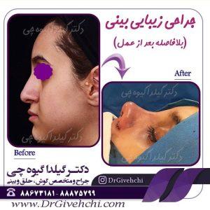 جراحی زیبایی بینی بلافاصله بعد از عمل